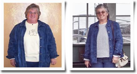 Kathy K – 100 lb. Weight Loss