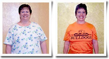 Cynthia – 64 lbs. Weight Loss