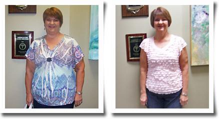 Pam R Weight Loss Success